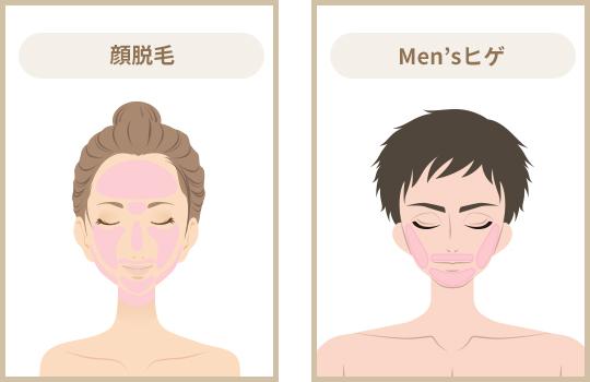 顔脱毛・Men'sヒゲ
